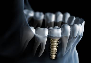 10 Myths about implant